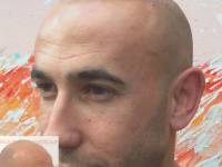 THIS IS HOW TO GAIN A MORE YOUTHFUL APPEARANCE! This Novoscalp SMP Clinic Transformation Is Pretty Amazing. It Is Scalp Micropigmentation And It Is Gaining Popularity Fast. Let Anyone You Know About This Alternative To Appearing Bald. Novoscalp Clinic Is