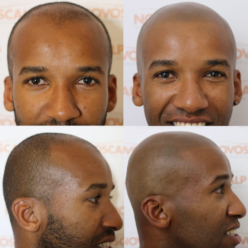 Scalp Micropigmentation Clinic Hair Tattoo Sydney Novoscalp