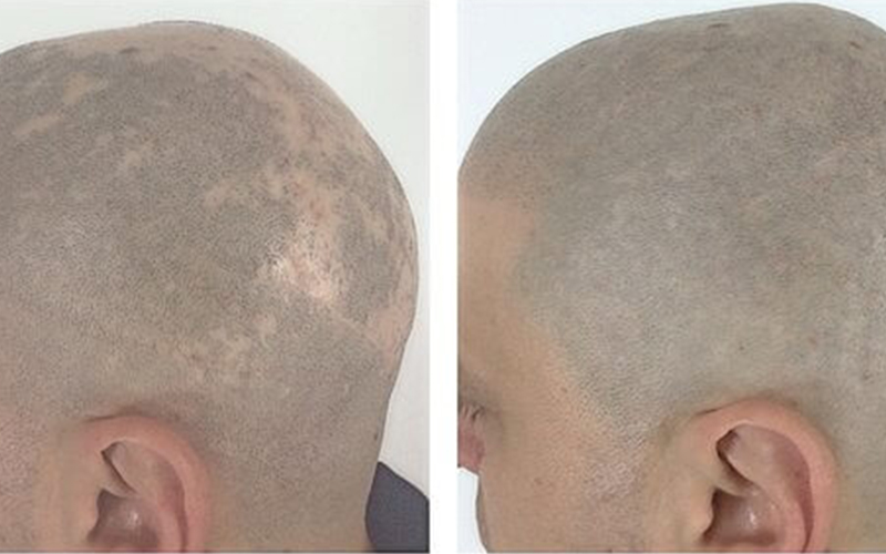 SMP Treatment for Alopecia Sufferers