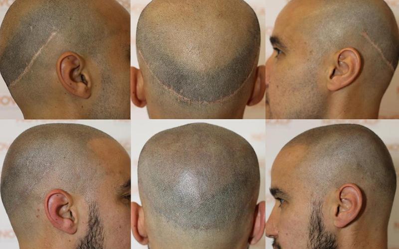SMP Treatment for Scar Concealment