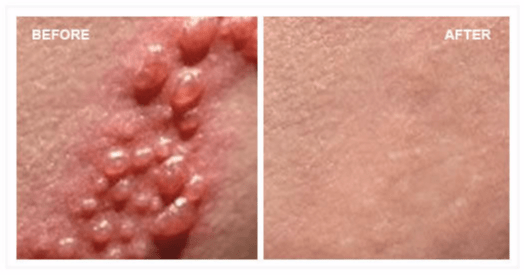 Herpes before and after