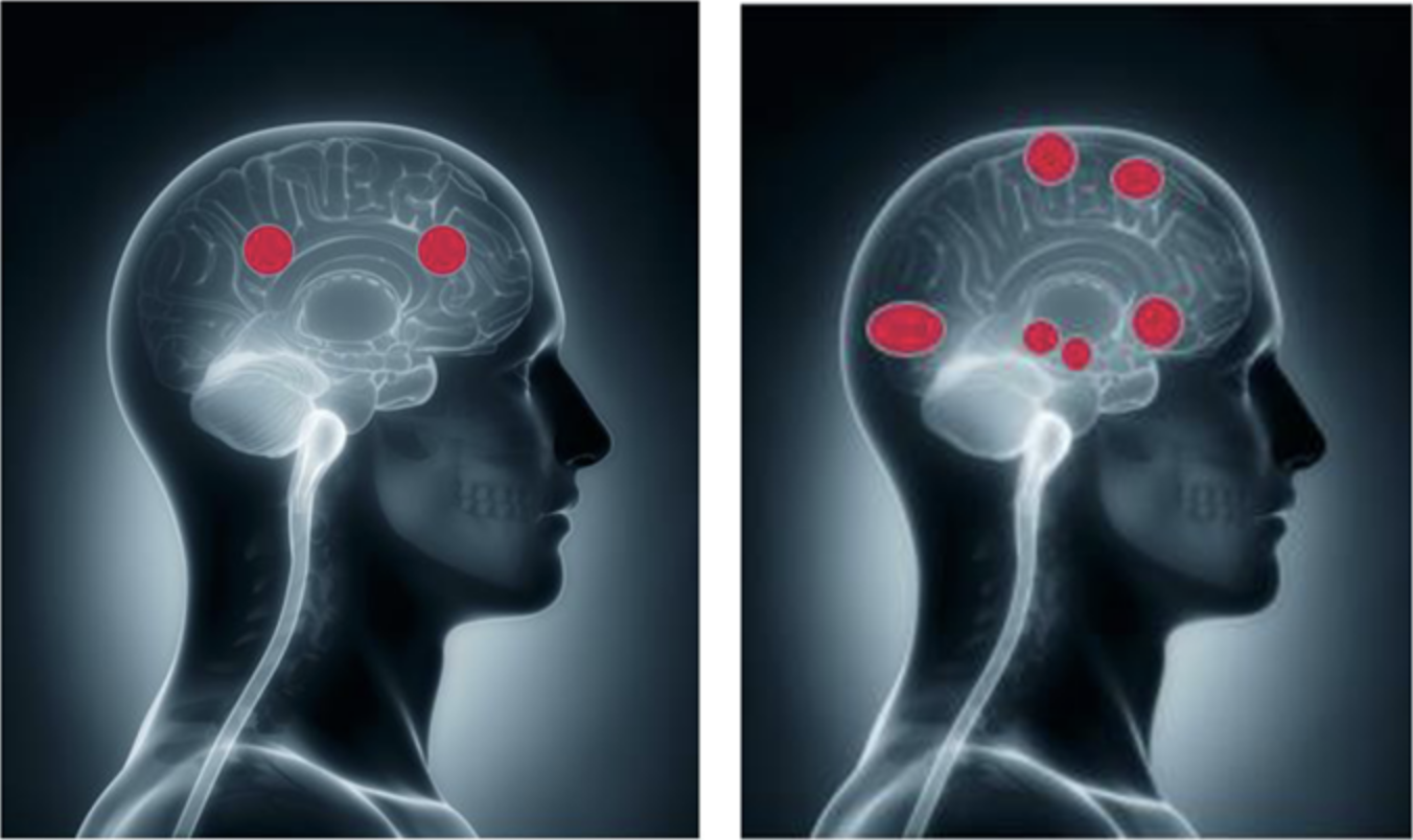 Brain stimulation by facts & information (left) - and when emotions are triggered (right).