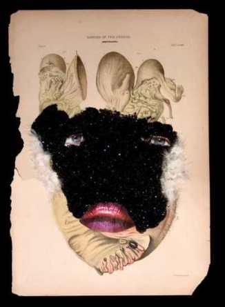 Cancer of the Uterus, 2005, Glitter, fur, collage on found medical illustration paper, 18