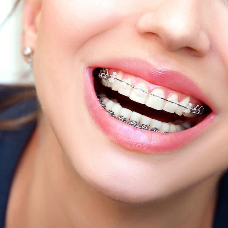 コロナ禍がブームを後押し⁉ 大人の歯列矯正が人気な件