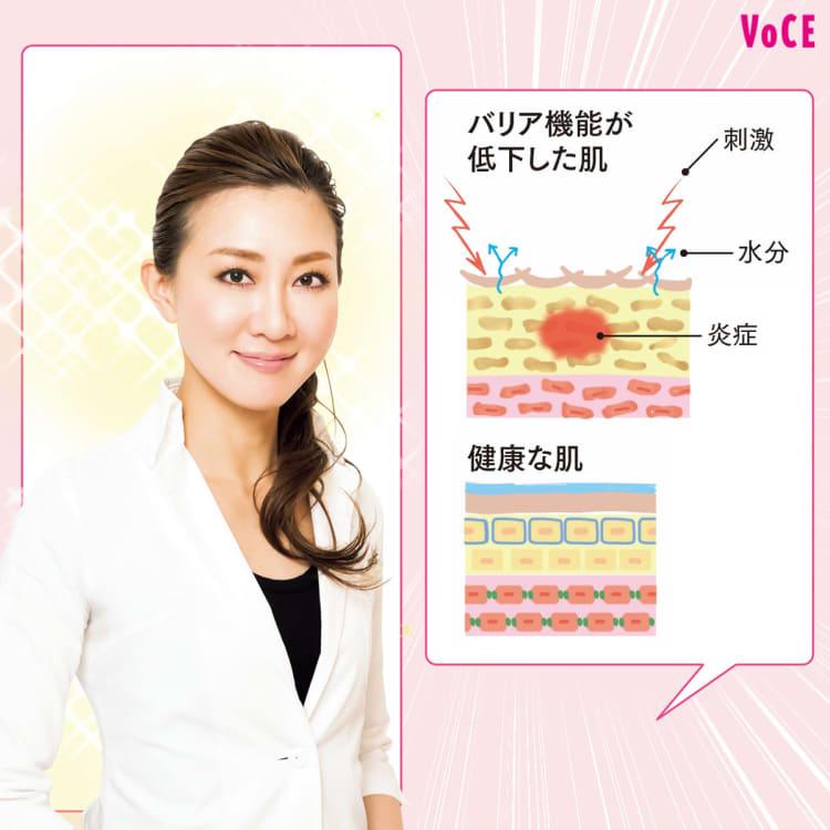 【ニキビ、肌あれ、かゆみ】肌トラブルの原因&解消法を伝授! VOCE2021年10月号 貴子先生