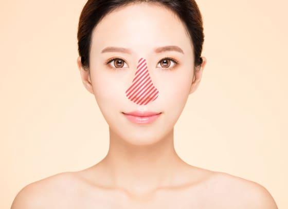 ない 鼻 治ら の ニキビ