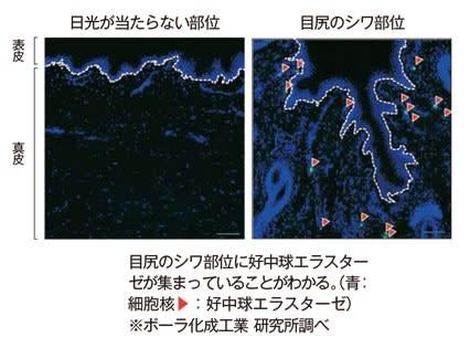 目尻シワ部位皮膚組織中の好中球エラスターゼ染色像