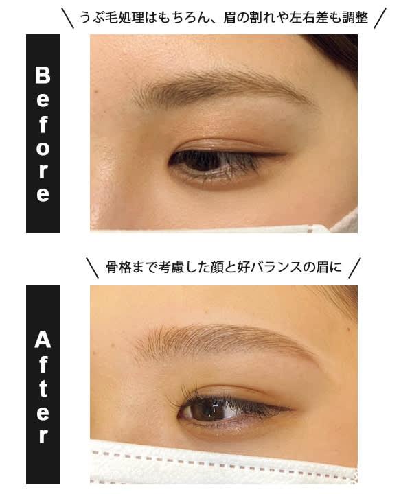 眉毛Before、After