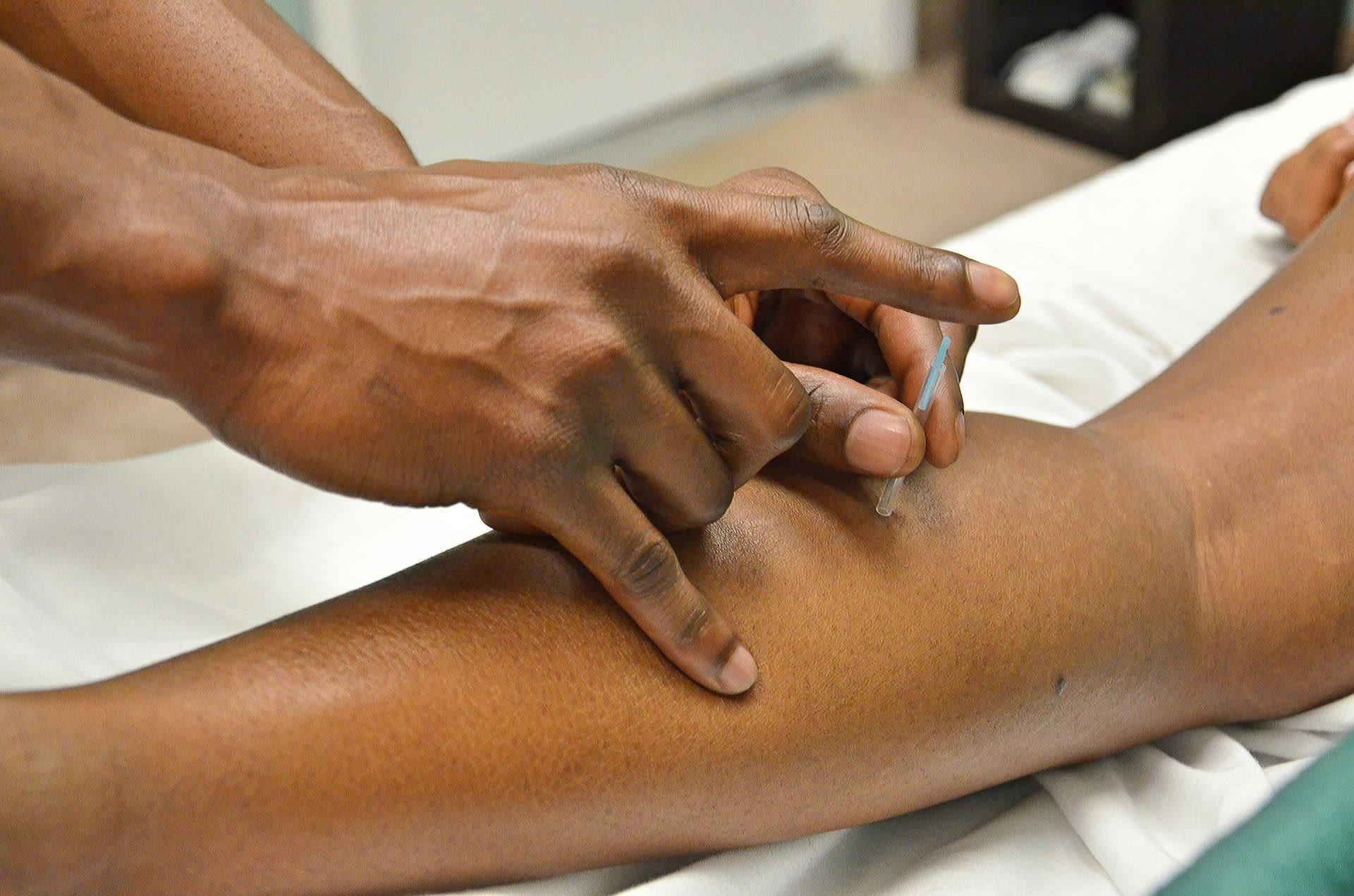 el tratmiento milenario de la acupuntura