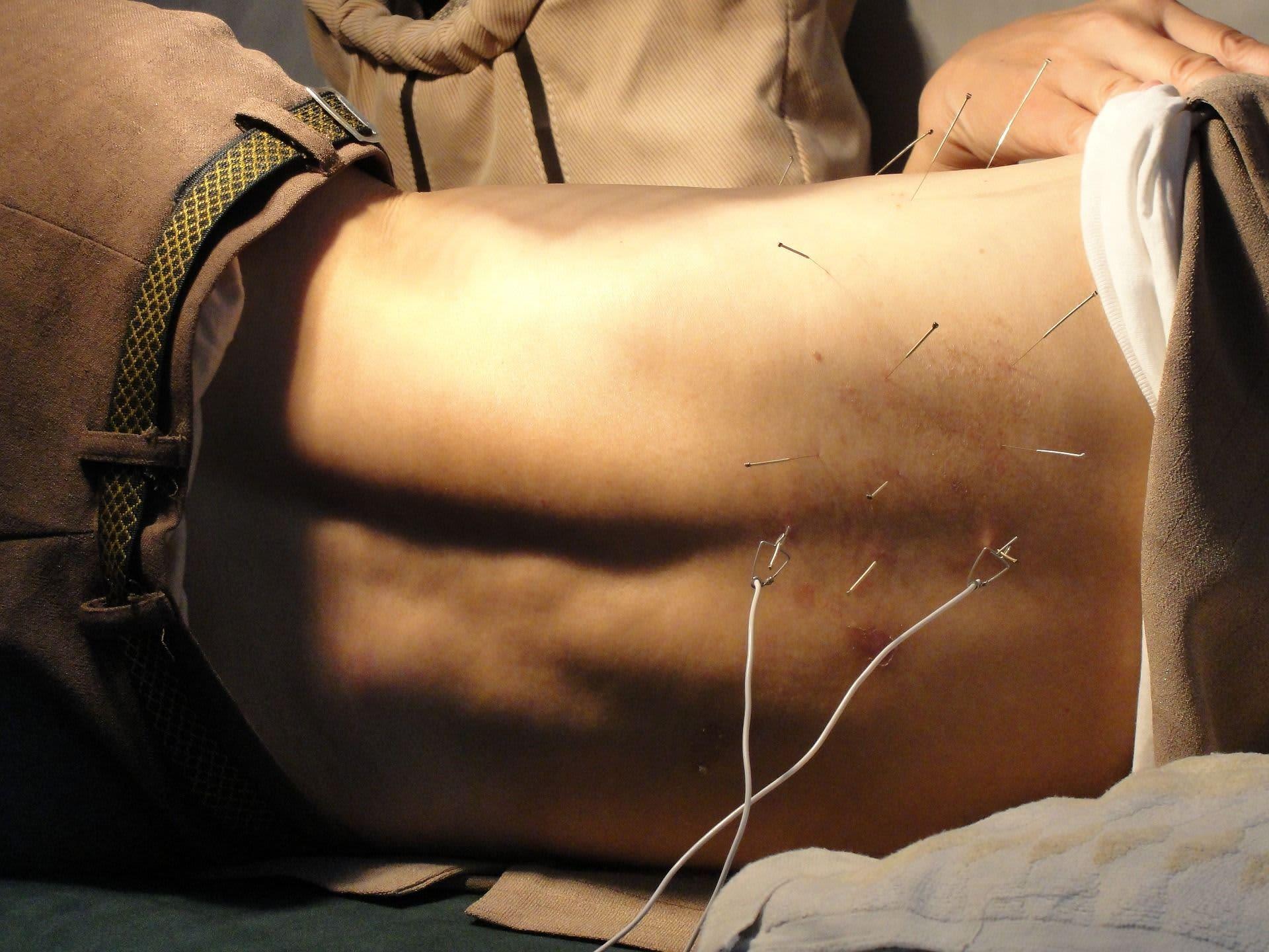 Beneficios de la acupuntura: ¿Quieres Saber Cuales Son?