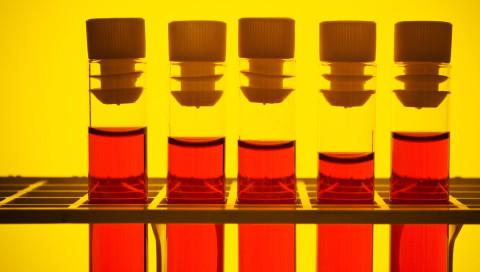 Ein Bluttest könnte zur neuen Wunderwaffe gegen Krebs werden