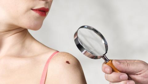 Bald besser als der Hautarzt: Diese KI erkennt Hautkrebs