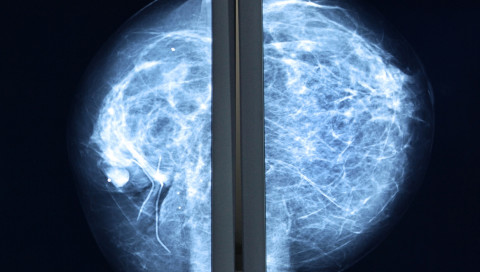 Künstliche Intelligenz in der Krebsbehandlung: weniger Fehler, bessere Therapie?