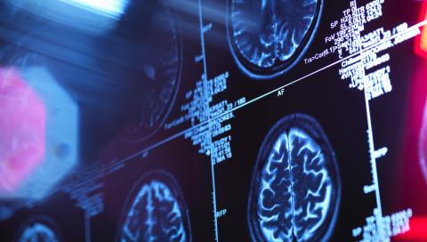 Eine Künstliche Intelligenz erkennt Alzheimer sechs Jahre früher als Ärzte
