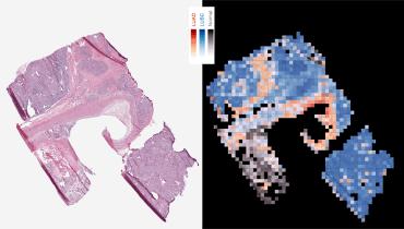 Krebsforschung: KI von Google erkennt genetische Mutationen in Tumoren
