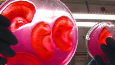 Ohren aus Äpfeln: Dieser Biohacker entwickelt Implantate zum Selbermachen
