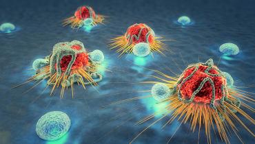 So kann Künstliche Intelligenz im Kampf gegen Krebs helfen