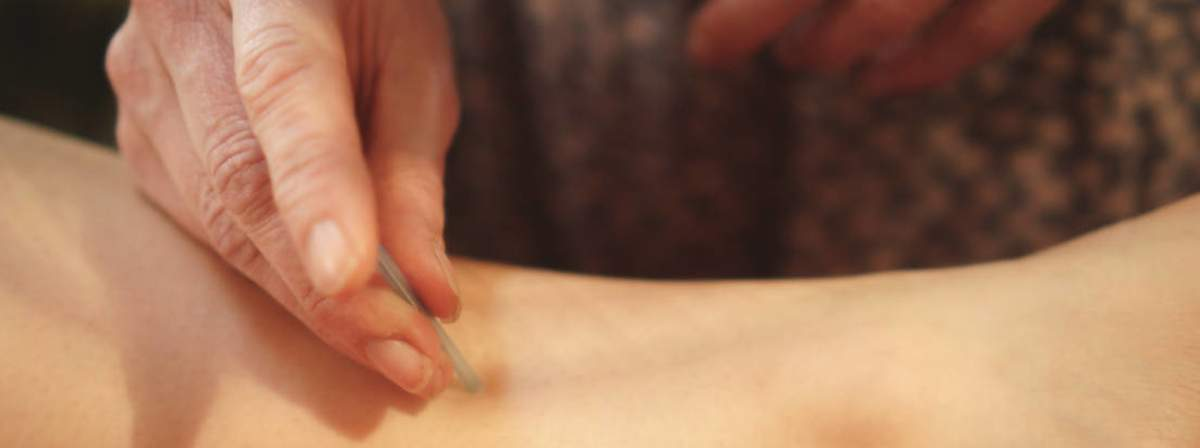 Other Conditions Treated with Acupuncture