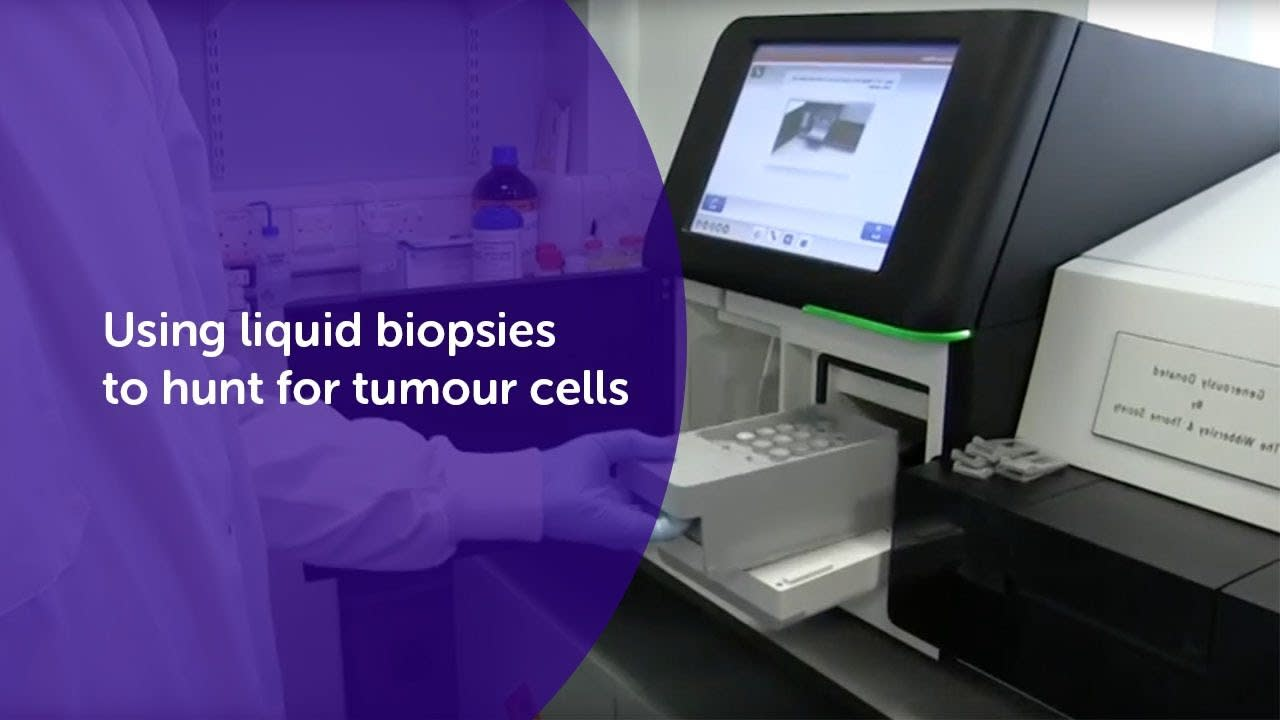 Using liquid biopsies to hunt for tumour cells