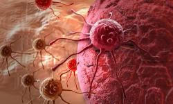 जीवनशैली में सुधार लाकर कैंसर के खतरे को कर सकते हैं कम : रिसर्च