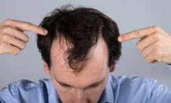 Hair Loss Treatment: Medicines For Hair Fall And Hair Regrowth