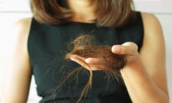 Steps For Hair Fall Management | Skin Diaries | Dr. Richa Sharma (MD Dermatology)