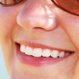 5 einfache Tipps für weißere Zähne