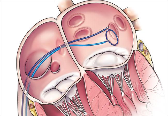 Ablacion de palpitaciones y taquicardias