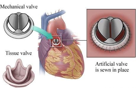 Cirugía Valvular Aórtica Corazón Abierto