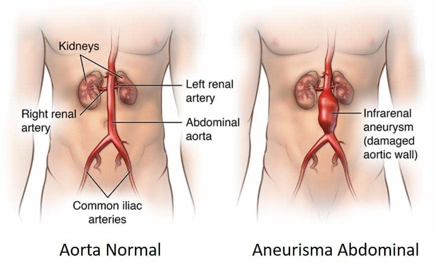 Disección de la Aorta