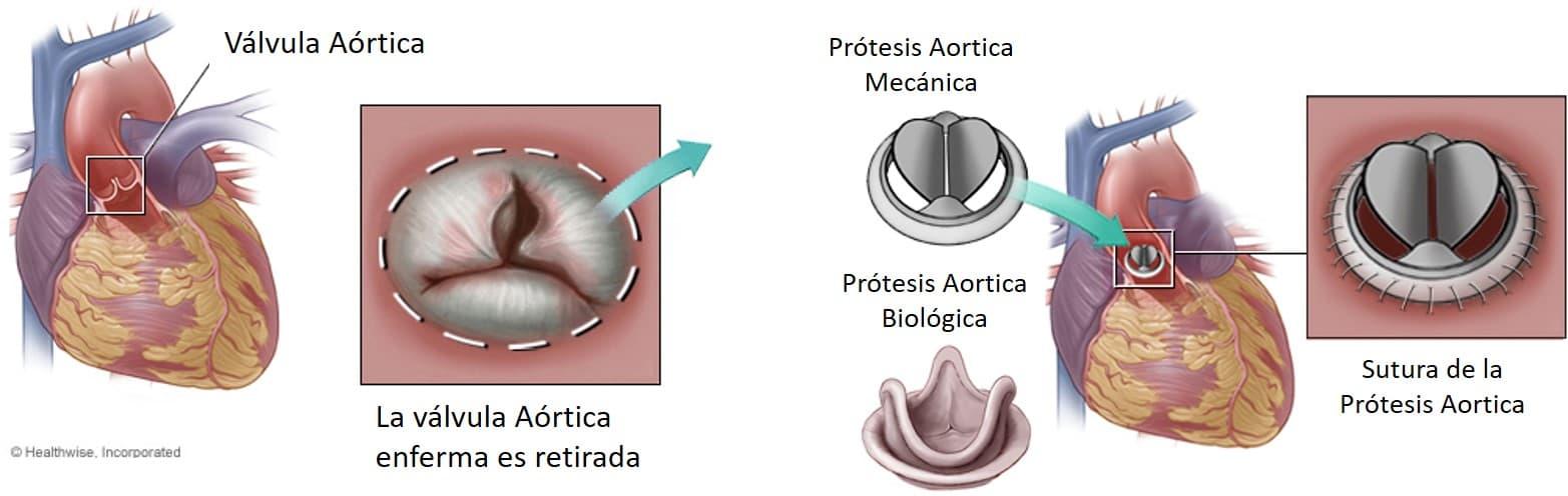 Cambio valvular aortico protesis
