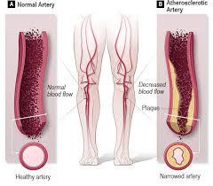 intervencion vascular perifericaa
