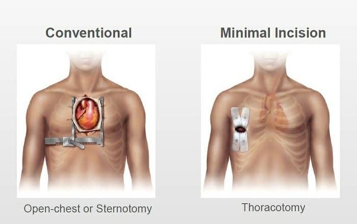 Cirugia Cardiaca de Minima Invasion