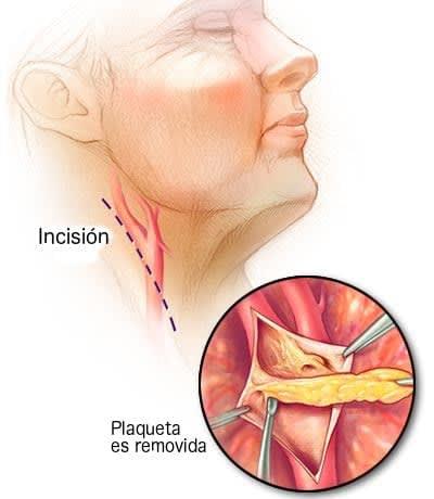 cirugía para resección de calcio en las carotidas