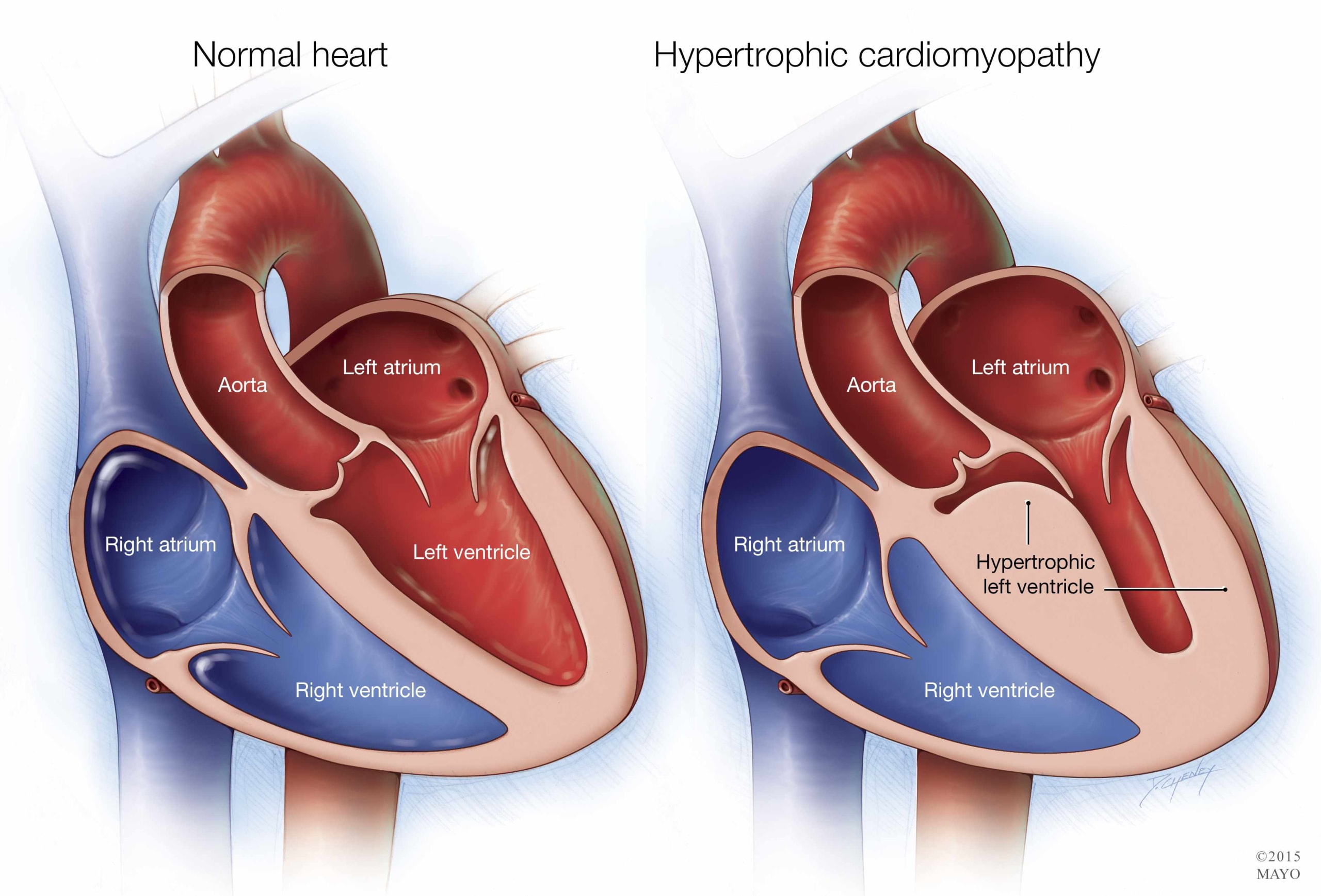Miocardiopatia hipertrofica septal asimetrica