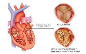 Valvula aortica tapada