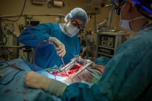 Cirugia de Corazón Abierto
