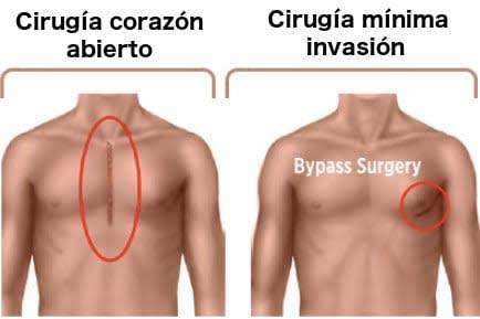 Cirugia de Bypass Coronario