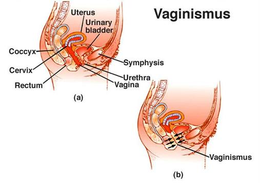 The Home of the Vagina Coach, Kim Vopni