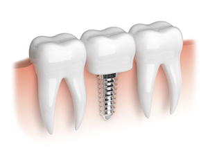 dental implant anchor titanium gum