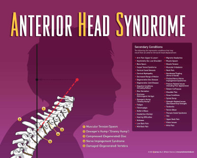 Anterior Head Syndrome, Chiropractic, AHS,