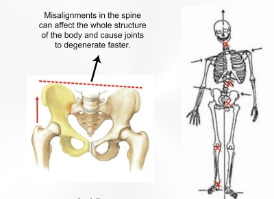Left Leg Pain, Pelvic Shift, Leg length, posture, structural shift