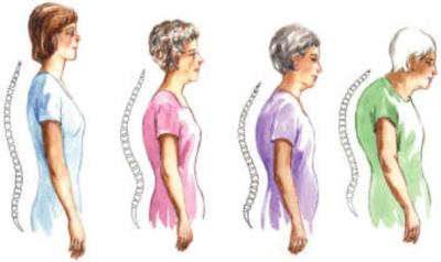 Elderly, posture, health, chiropractic