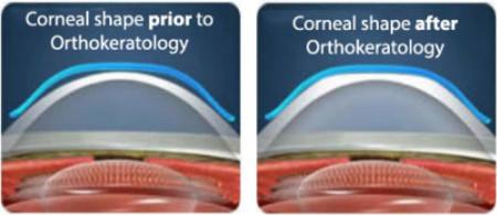 ortho-k, orthokeratology