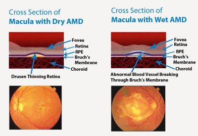 macula, dry AMD, wet AMD, retina, thinning retina