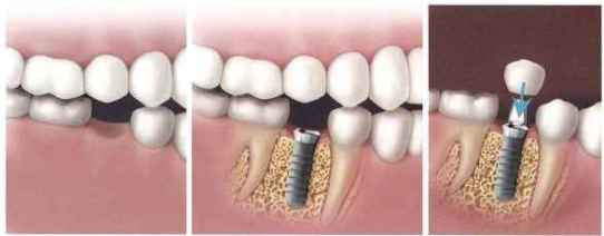 Implant dental tooth anchor titanium crown artificial sequence process