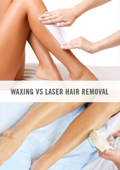 Nina L'Allure, Burlington, Laser Hair Removal