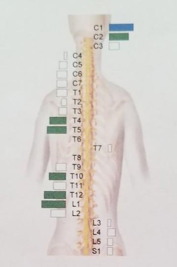 thermal scan, vertebrae, spiritual map, organs, emotional, psychological, issues