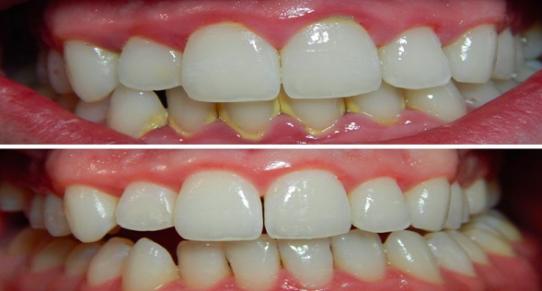 plaque, dentistry in waterloo, dentist