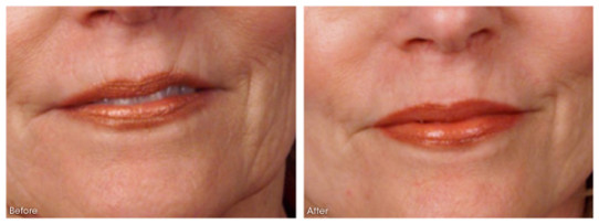 Your Perfect Skin Inc., Burlington, Venus Skin Treatments